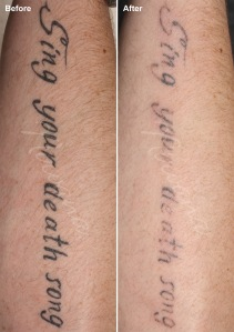 ber-ba-tattoo-removal