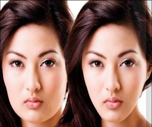 jaw-reduction-botox