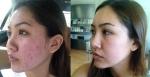 skin-perfect-brothers-walnut-acne