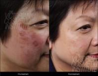 skin-pigmentation-before-after