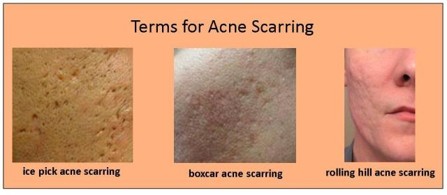 acne-scarring-terms1