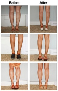 calf botox_before&after
