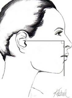 ideal chin