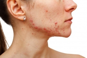Adult onset acne