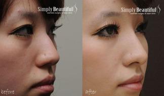 nose-filler-injection-01
