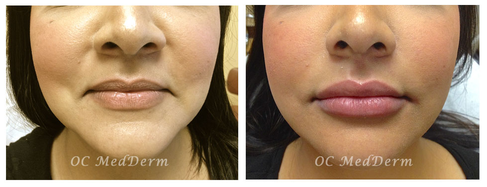 Lip_augmentation_Before_after