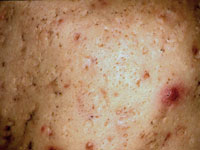 acne-scar1-s
