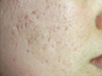 acne-scarring-2-s