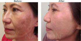 Before-After-Photos-Melasma-with-Laser-IPL-Damage