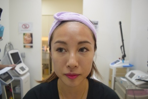 V-LIFT FACE By DR DANIEL CHANG