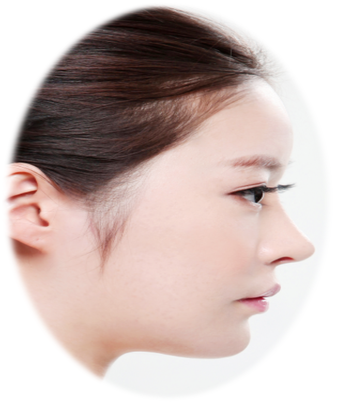 ASIAN NOSE | HIKO Nose Threadlift vs Nose Fillers vs Rhinoplasty