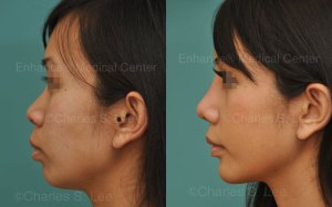 rhinoplasty-natural-ear-cartilage-dr-charles-s-lee-mj