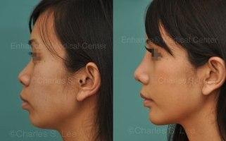 rhinoplasty-natural-ear-cartilage-dr-charles-s-lee-mj