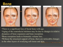 aging-face-ppt-6-638