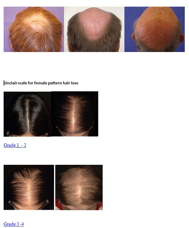 hair loss grading