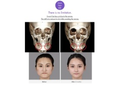 korean-best-face-contouring-18-638