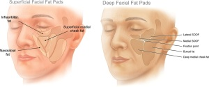 Soft tissue volume in face - Dermal Fillers