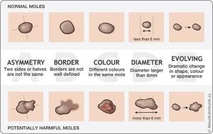 abcde-of-moles