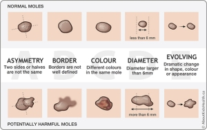 abcde-of-moles