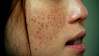 get-rid-of-freckles-and-brown-spots-by-using-this-amazing-natural-remedy-featured