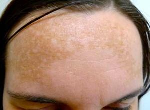 skin-pigmentation-diagnosis
