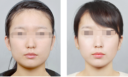 Korean Threadlifts (Ultra V, Y, S) and Dr Daniel Chang's trademark