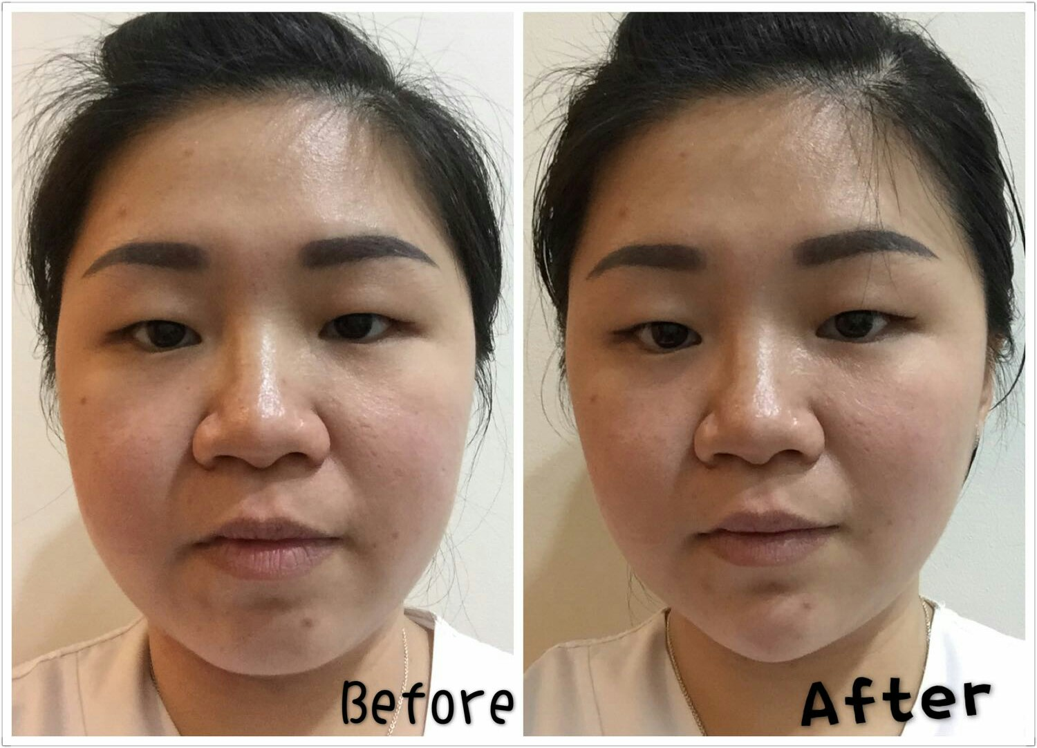 CHIN FILLERS | V-SHAPE – KOREAN Medical AESTHETIC SG  Asia | Dr