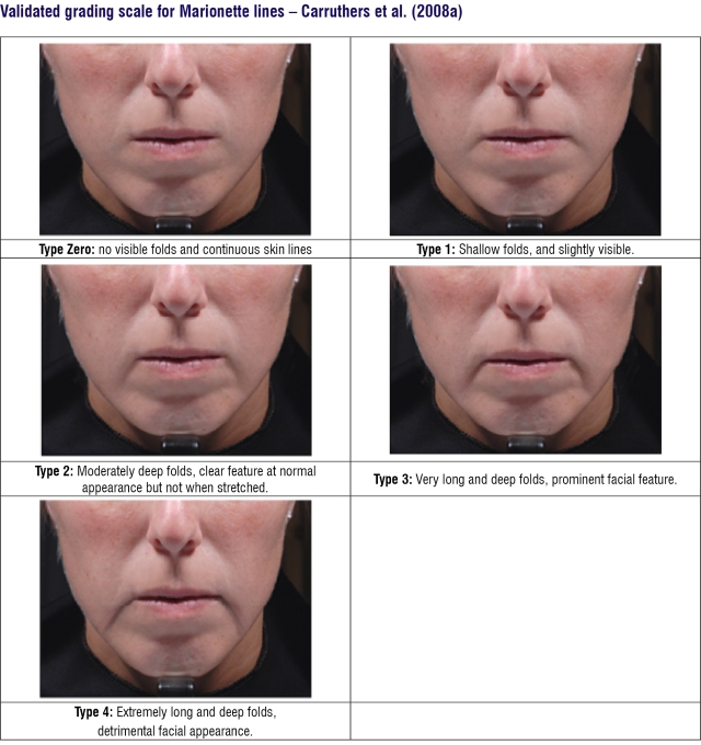 Skin fold scale
