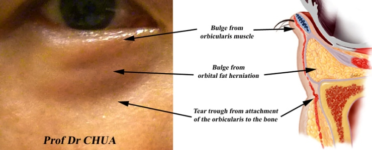 anatomy-of-eye-bags-eyelid-surgery-by-prof-dr-cn-chua-the-surface.jpg